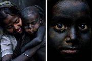 این کودکان هر روز سیاهتر میشوند!